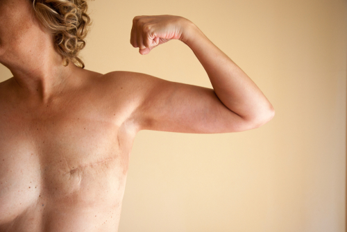 A woman flexing her bicep after the mastectomy surgery