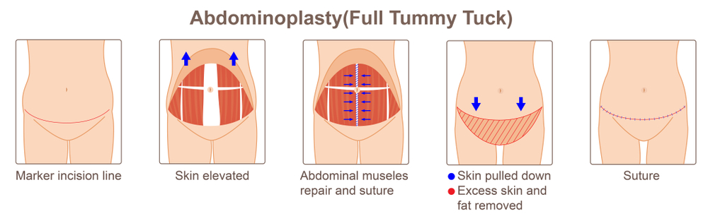 Infographic of the procedure and steps involved for tummy tuck surgery