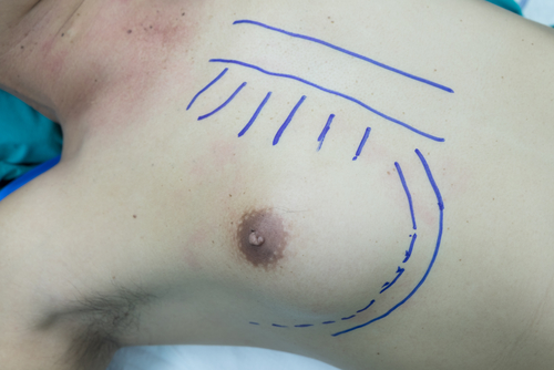 Measurement or markings done around a man's breast with blue marker before gynaecomastia removal