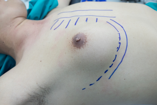 A close-up of markings done around a man's breast with blue marker before gynaecomastia removal