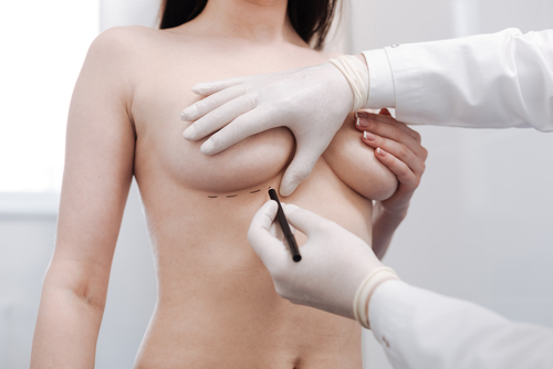 Doctor taking measurements before the breast augmentation surgery wearing white gloves