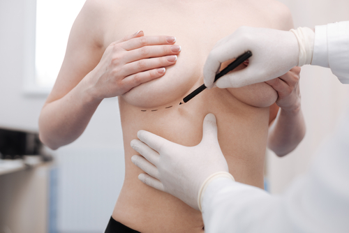 Nurse making measurements with a black marker for breast reconstructive surgery