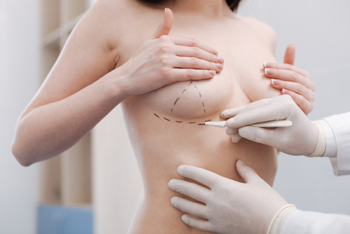 Measurements done on a womens breast with a black marker for by a nurse for reconstructive surgery