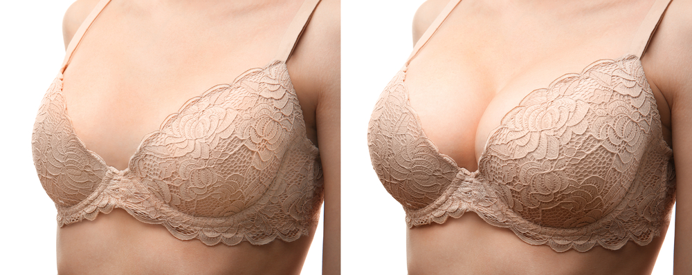 Before and after image of breast augmentation wearing a beige bra
